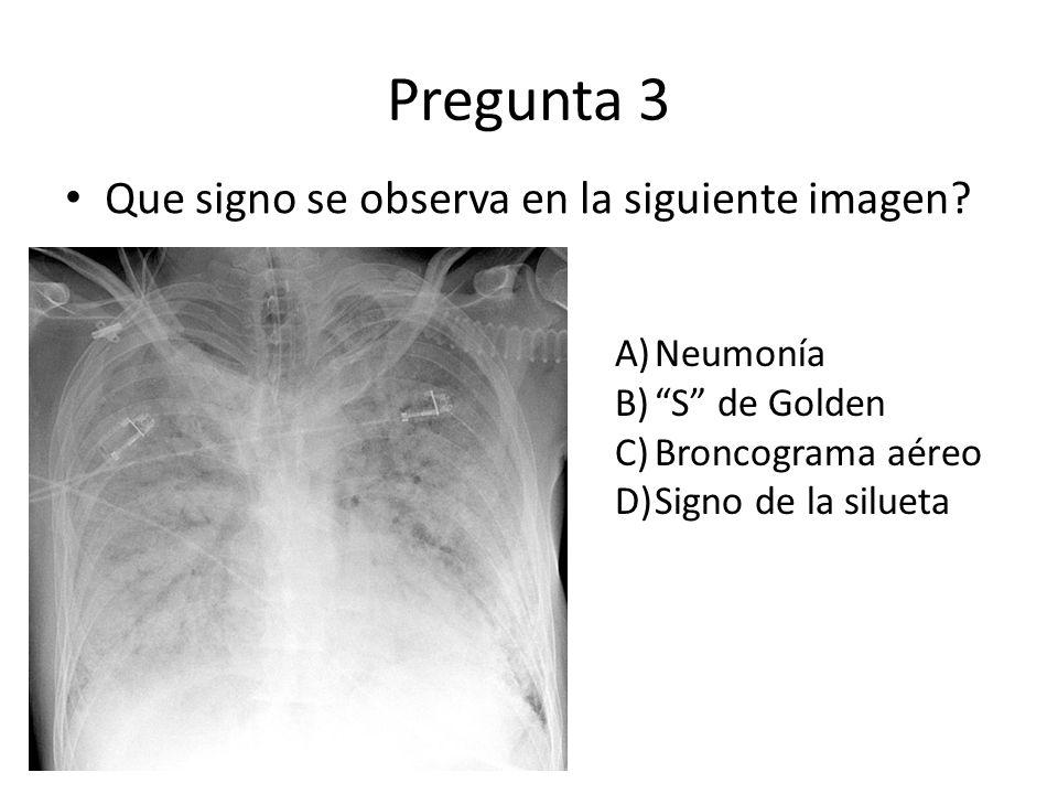 Pregunta 3 Que signo se observa en la siguiente imagen? A)Neumonía B)S de Golden C)Broncograma aéreo D)Signo de la silueta