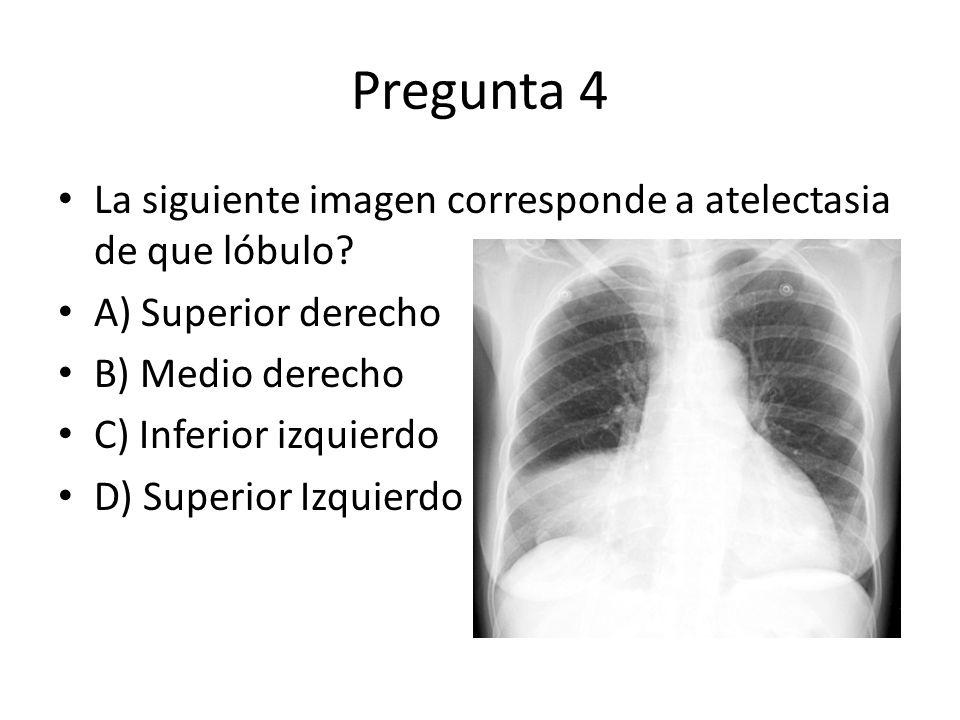 Pregunta 4 La siguiente imagen corresponde a atelectasia de que lóbulo? A) Superior derecho B) Medio derecho C) Inferior izquierdo D) Superior Izquier