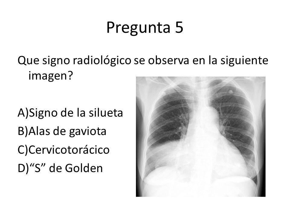 Pregunta 5 Que signo radiológico se observa en la siguiente imagen? A)Signo de la silueta B)Alas de gaviota C)Cervicotorácico D)S de Golden