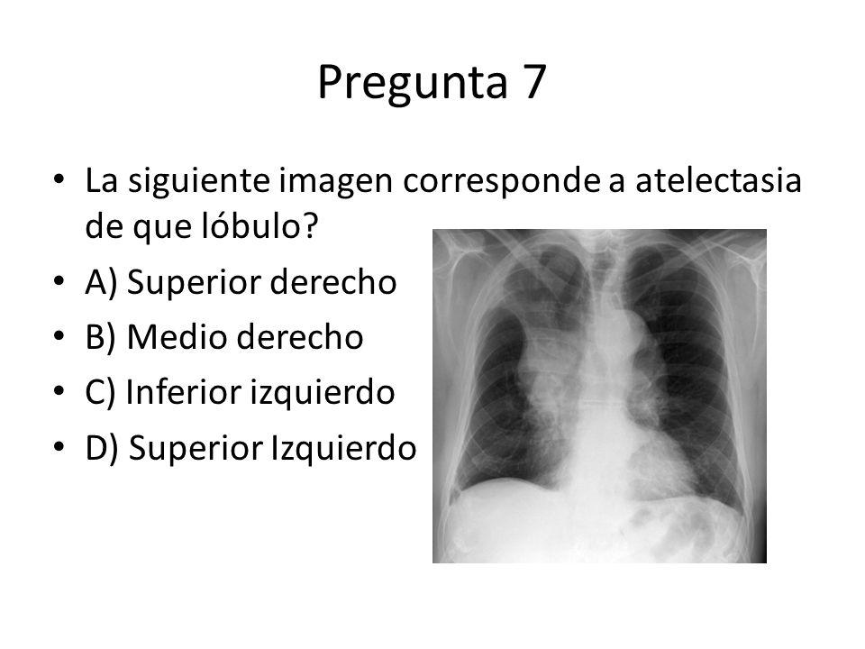 Pregunta 7 La siguiente imagen corresponde a atelectasia de que lóbulo? A) Superior derecho B) Medio derecho C) Inferior izquierdo D) Superior Izquier