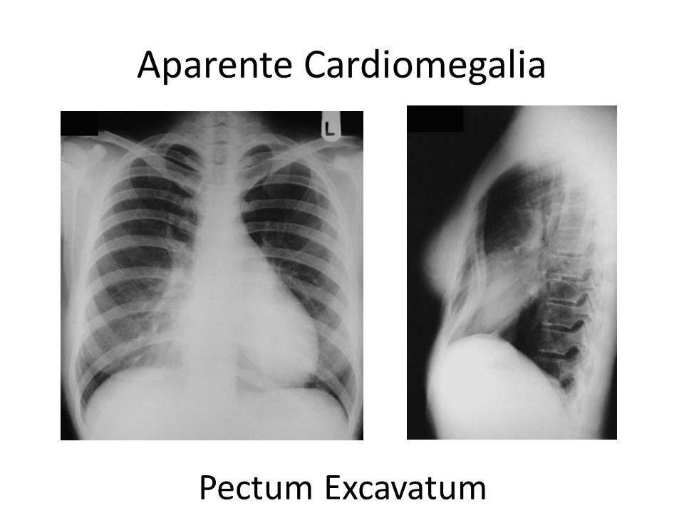 Aparente Cardiomegalia Pectum Excavatum