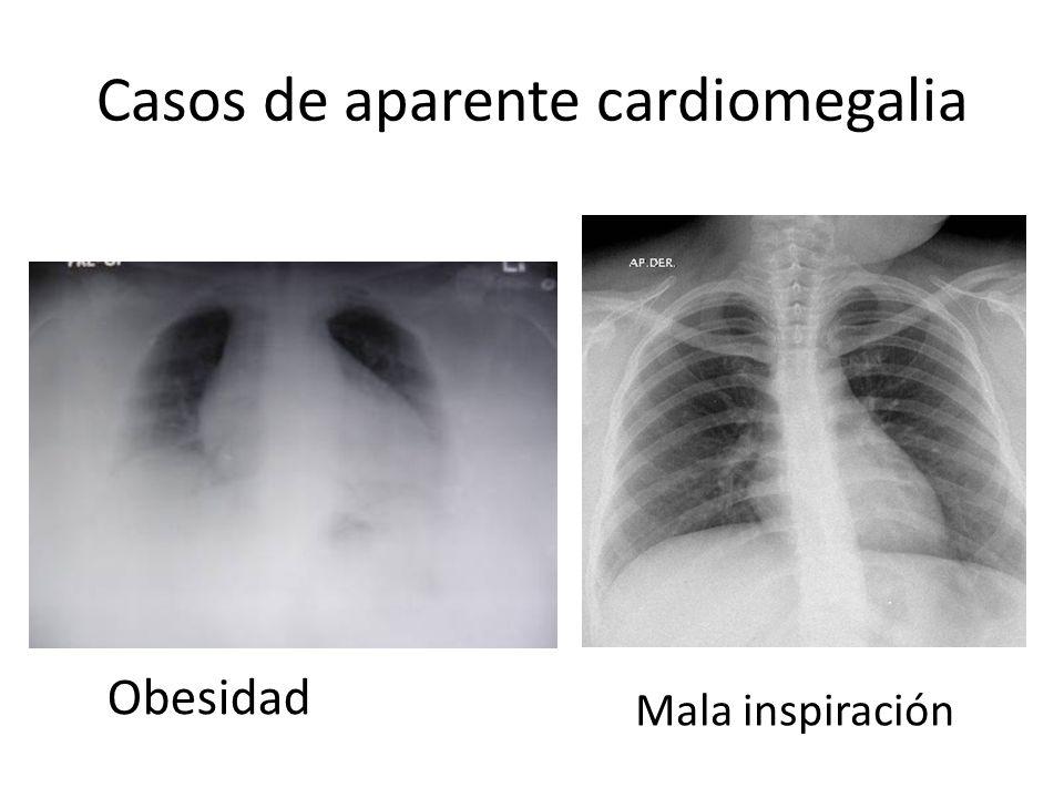 Casos de aparente cardiomegalia Obesidad Mala inspiración