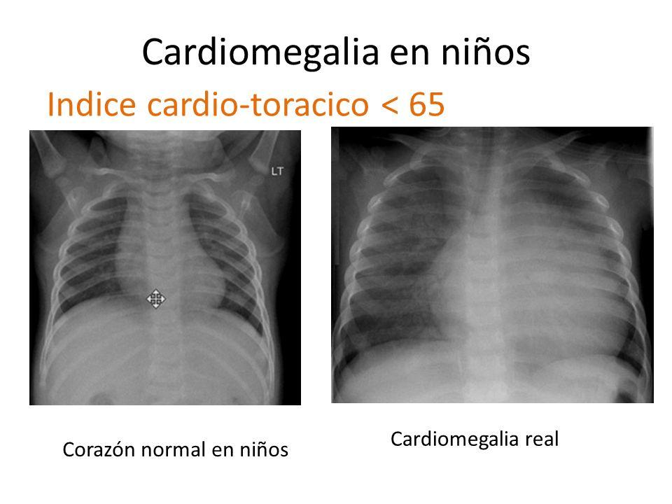 Cardiomegalia en niños Corazón normal en niños Cardiomegalia real Indice cardio-toracico < 65
