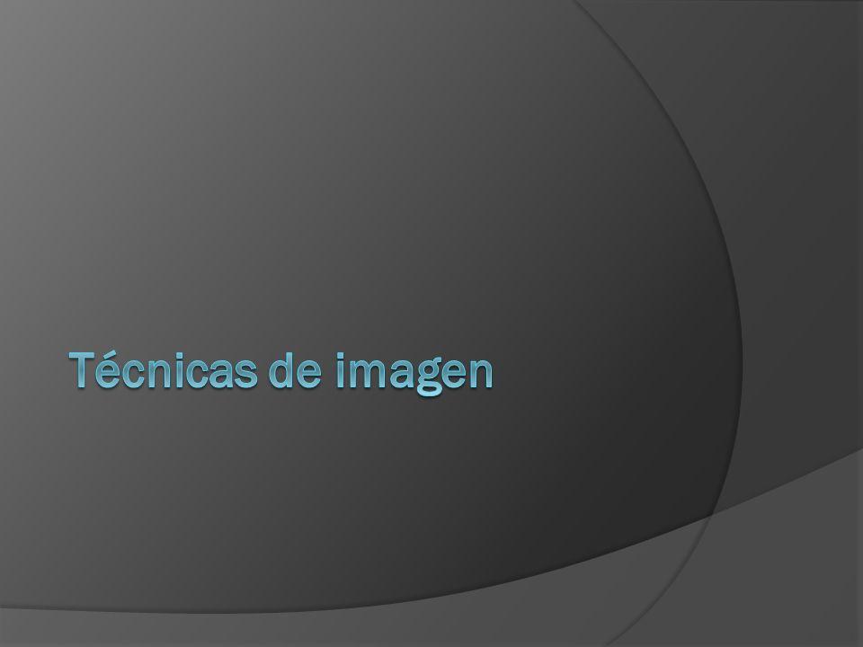Métodos de estudio en Ginecología Simple de abdomen Urografía excretora Cistograma Colon por enema Histerosalingografia Ultrasonido Doppler Tomografía Computada RMN