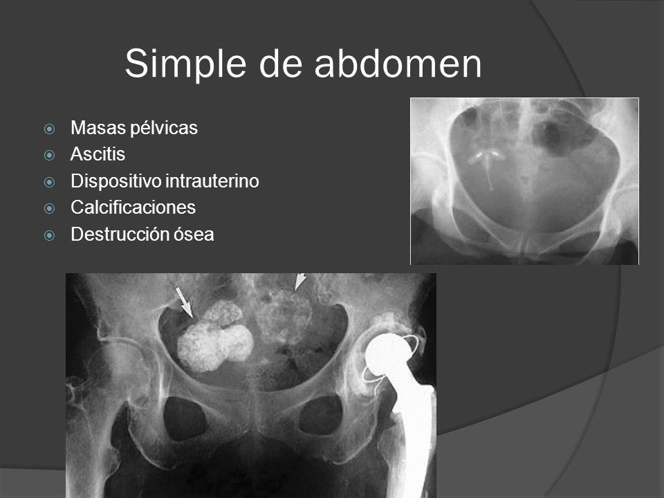 Urografía excretora Valoración de neoplasias ginecológicas Obstrucción Compresión Fistulas Colecciones