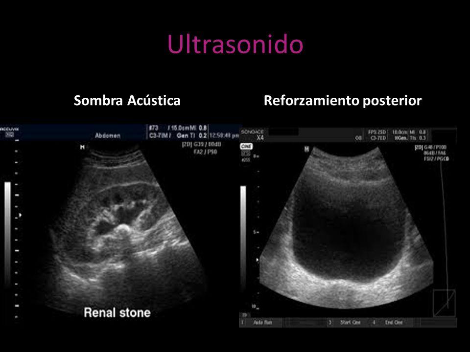 Ultrasonido Sombra AcústicaReforzamiento posterior