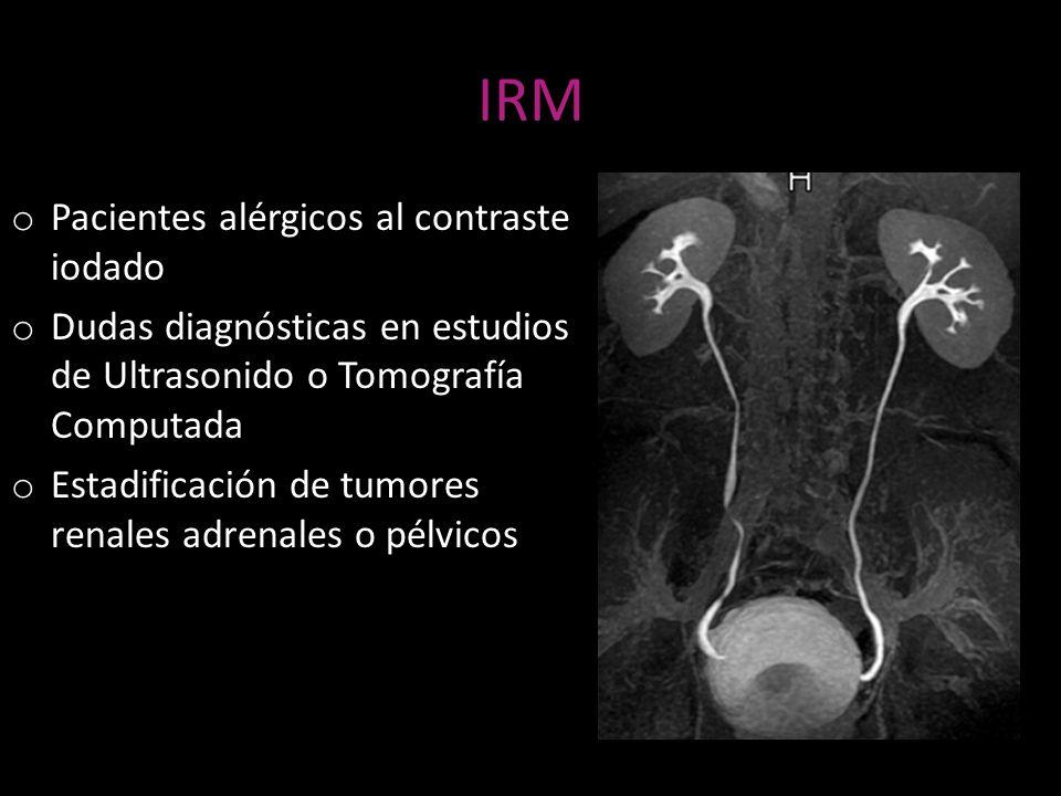 IRM o Pacientes alérgicos al contraste iodado o Dudas diagnósticas en estudios de Ultrasonido o Tomografía Computada o Estadificación de tumores renal