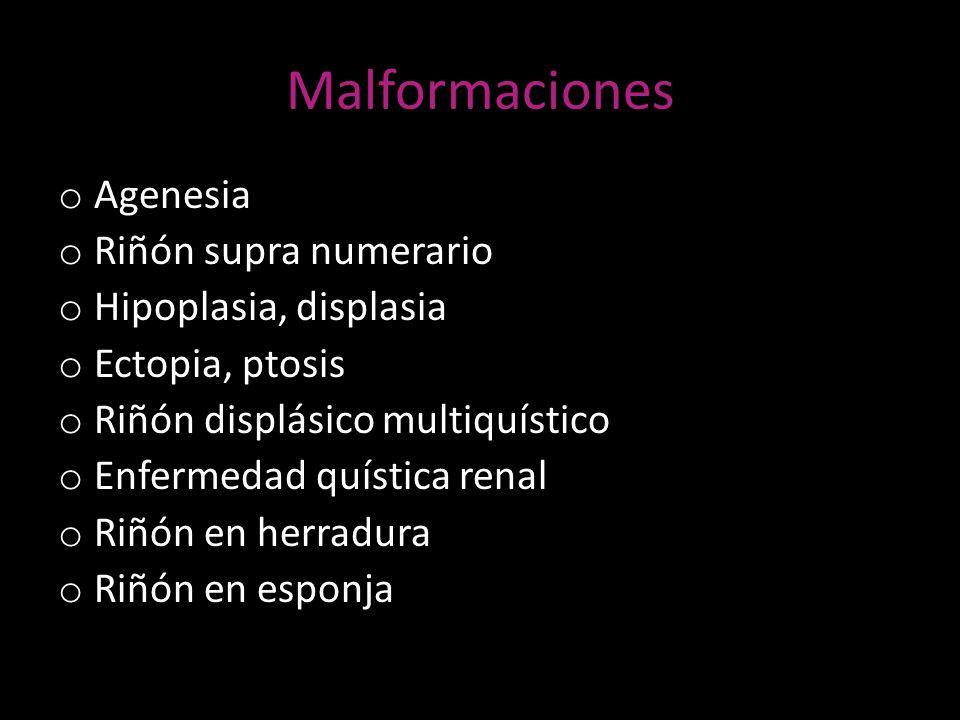 Malformaciones o Agenesia o Riñón supra numerario o Hipoplasia, displasia o Ectopia, ptosis o Riñón displásico multiquístico o Enfermedad quística ren