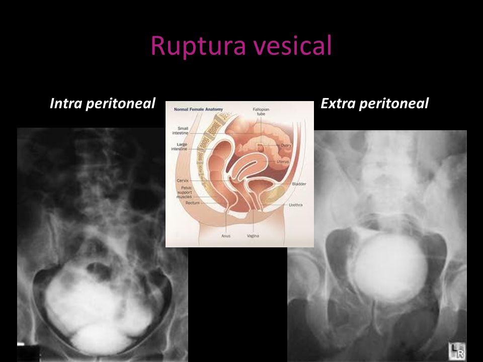 Ruptura vesical Intra peritonealExtra peritoneal