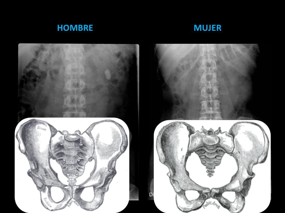 Trauma en uretra posterior Cistografia