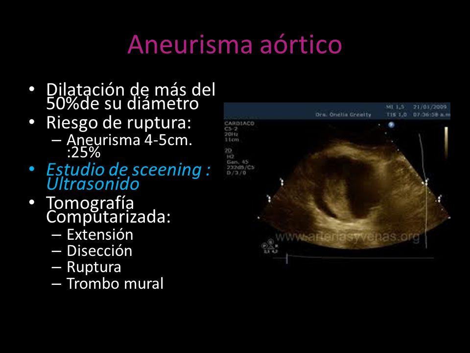 Aneurisma aórtico Dilatación de más del 50%de su diámetro Riesgo de ruptura: – Aneurisma 4-5cm. :25% Estudio de sceening : Ultrasonido Tomografía Comp