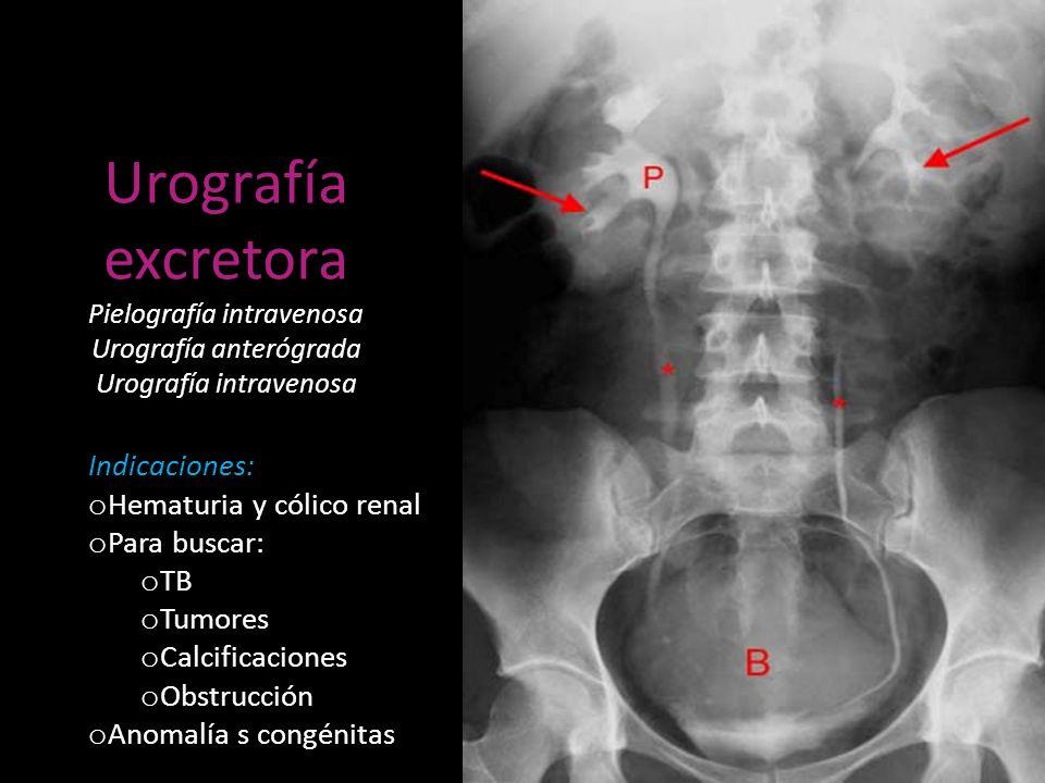 Urografía excretora Pielografía intravenosa Urografía anterógrada Urografía intravenosa Indicaciones: o Hematuria y cólico renal o Para buscar: o TB o