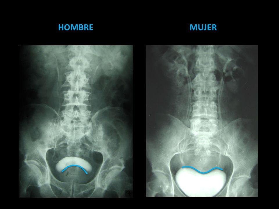 Ureteropielografía retrógrada Indicaciones o Urografía excretora insatisfactoria o Pacientes alérgicos al medio de contraste