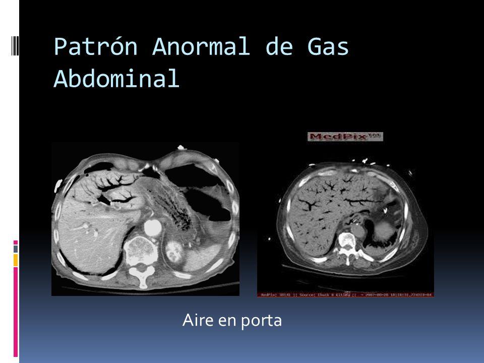 Patrón Anormal de Gas Abdominal Aire en porta