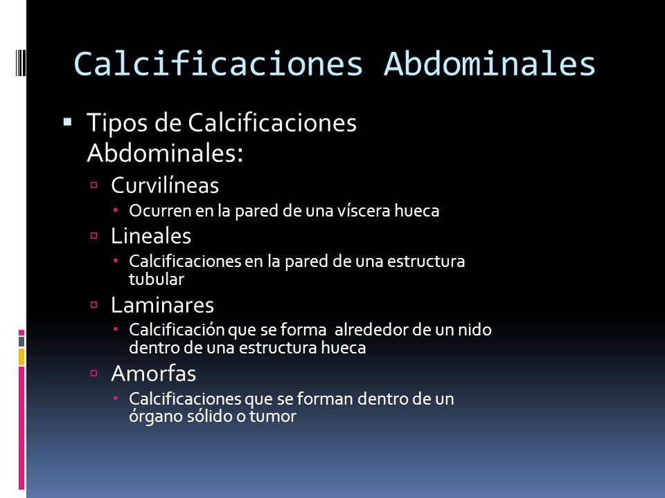 Calcificaciones Abdominales Tipos de Calcificaciones Abdominales : Curvilíneas Ocurren en la pared de una víscera hueca Lineales Calcificaciones en la