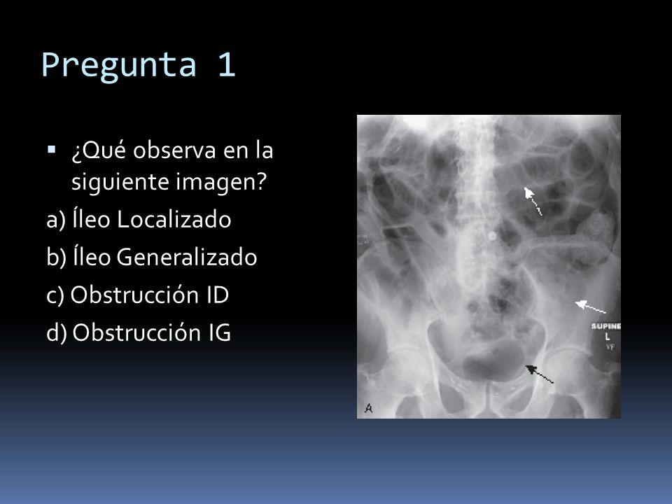 Pregunta 1 ¿Qué observa en la siguiente imagen? a) Íleo Localizado b) Íleo Generalizado c) Obstrucción ID d) Obstrucción IG
