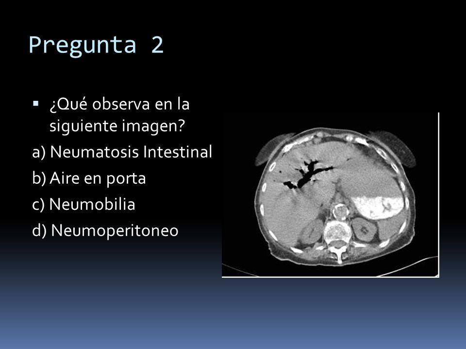 Pregunta 2 ¿Qué observa en la siguiente imagen? a) Neumatosis Intestinal b) Aire en porta c) Neumobilia d) Neumoperitoneo