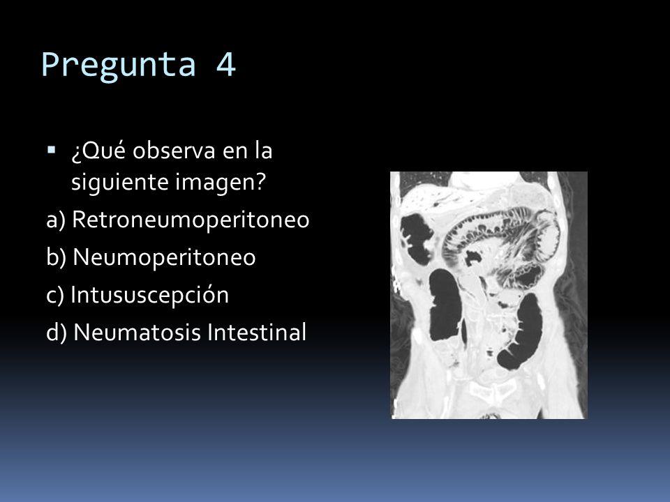 Pregunta 4 ¿Qué observa en la siguiente imagen? a) Retroneumoperitoneo b) Neumoperitoneo c) Intususcepción d) Neumatosis Intestinal