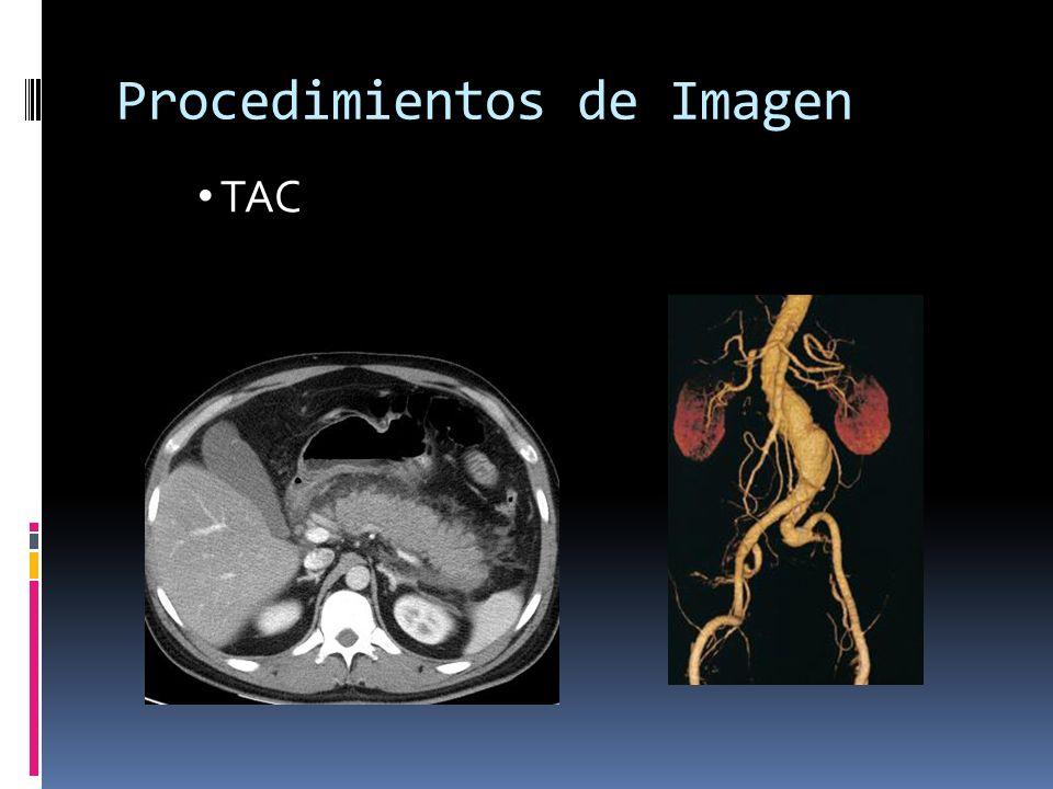 Procedimientos de Imagen TAC