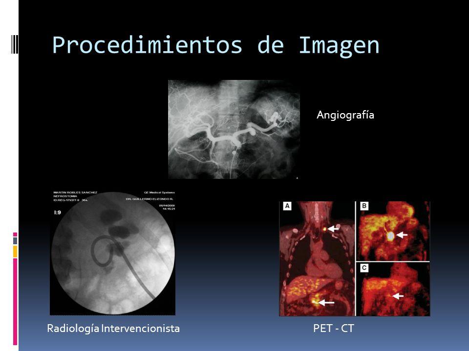 Procedimientos de Imagen Angiografía PET - CTRadiología Intervencionista