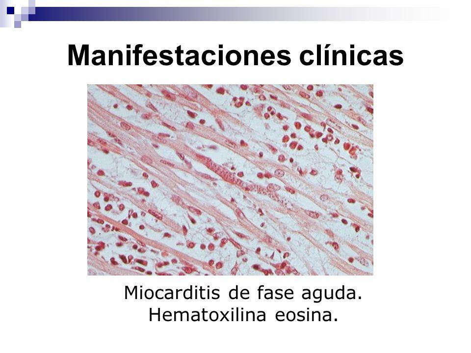 Manifestaciones clínicas Miocarditis de fase aguda. Hematoxilina eosina.