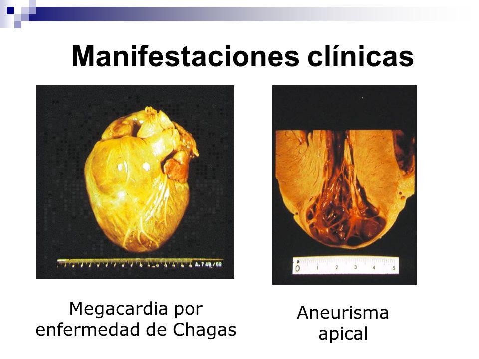 Manifestaciones clínicas Megacardia por enfermedad de Chagas Aneurisma apical