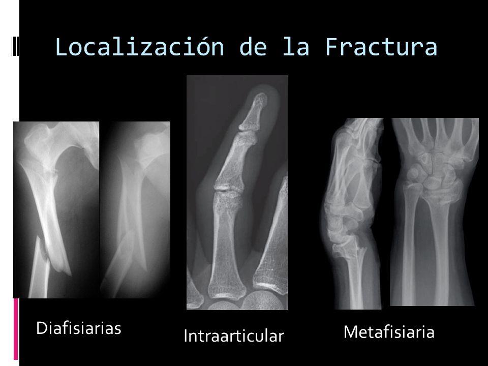 Localización de la Fractura Diafisiarias Intraarticular Metafisiaria