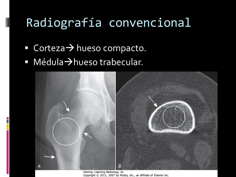 Corteza hueso compacto. Médula hueso trabecular. Radiografía convencional