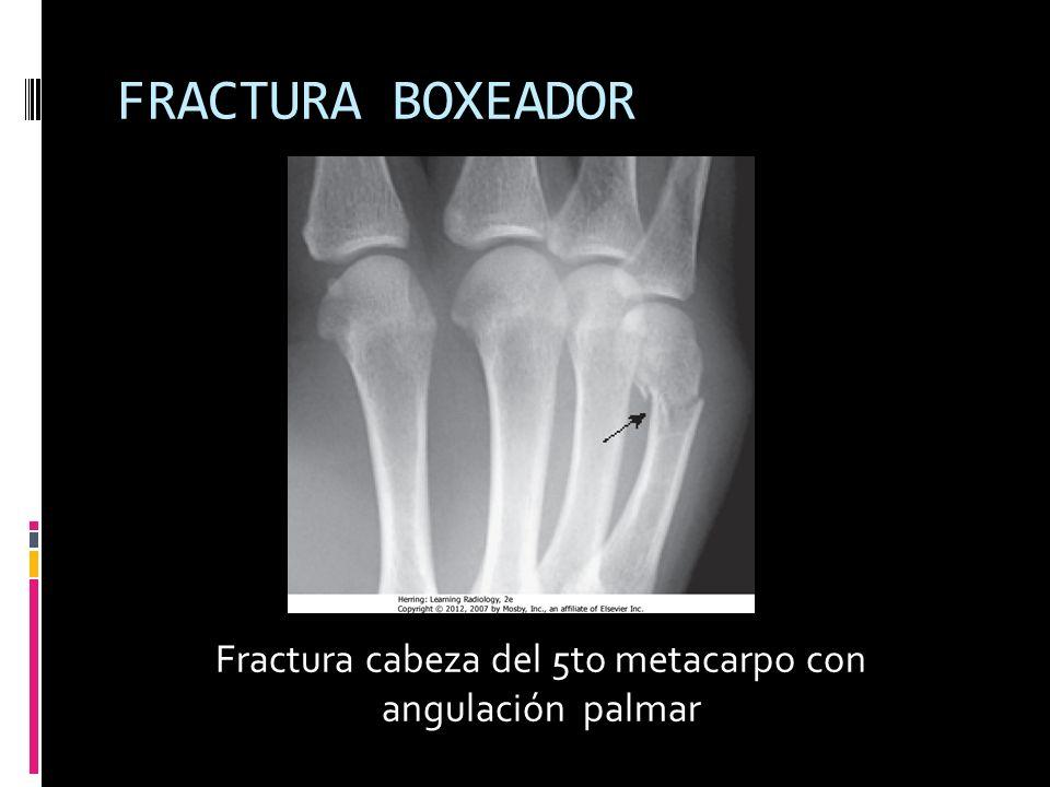 FRACTURA BOXEADOR Fractura cabeza del 5to metacarpo con angulación palmar