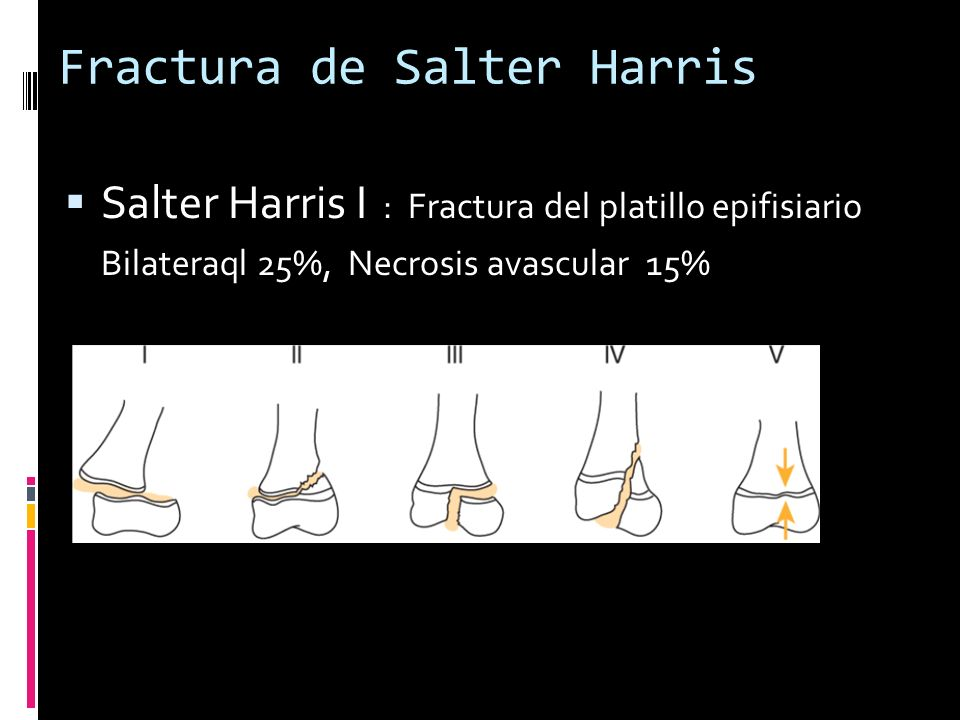 Fractura de Salter Harris Salter Harris I : Fractura del platillo epifisiario Bilateraql 25%, Necrosis avascular 15%