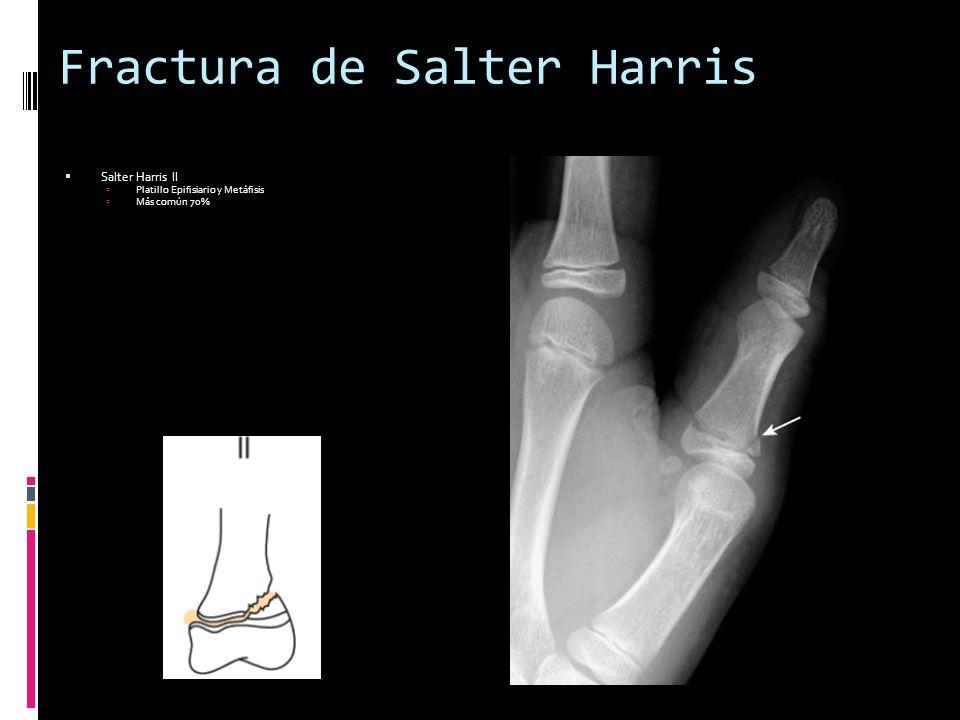 Fractura de Salter Harris Salter Harris II Platillo Epifisiario y Metáfisis Más común 70%