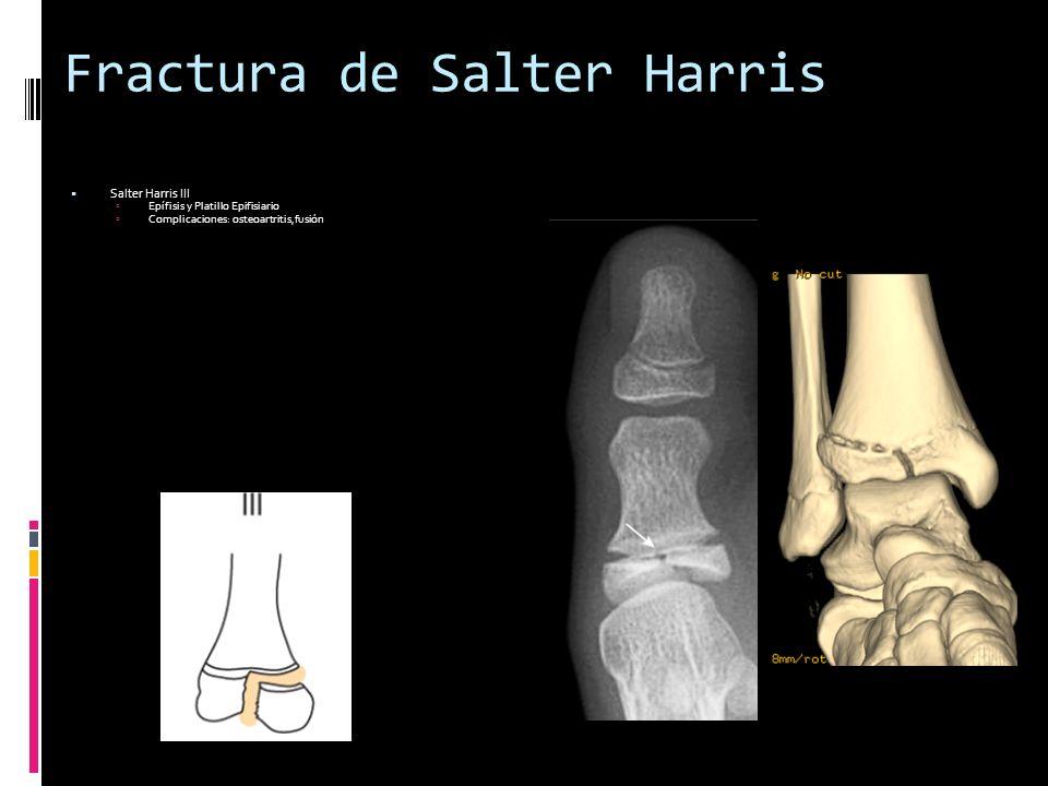 Fractura de Salter Harris Salter Harris III Epífisis y Platillo Epifisiario Complicaciones: osteoartritis,fusión