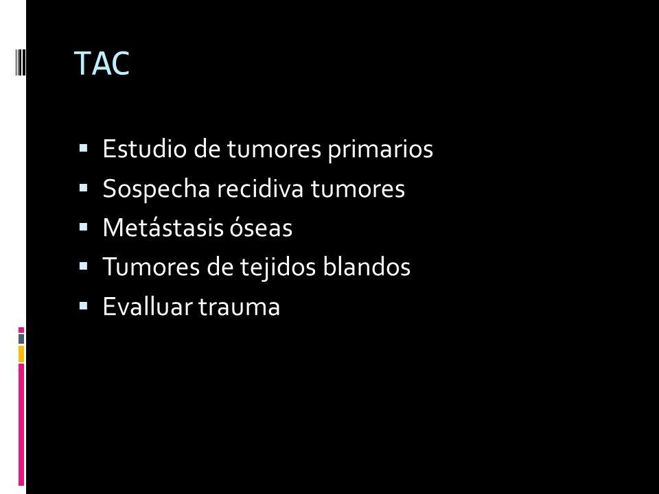 TAC Estudio de tumores primarios Sospecha recidiva tumores Metástasis óseas Tumores de tejidos blandos Evalluar trauma