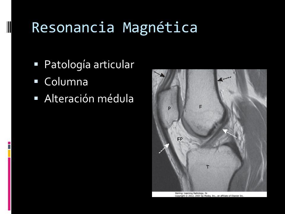 Relación entre Fragmentos Relación del fragmento distal con el proximal Alineada Desplazada Angulada