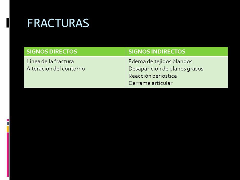 FRACTURAS SIGNOS DIRECTOSSIGNOS INDIRECTOS Linea de la fractura Alteración del contorno Edema de tejidos blandos Desaparición de planos grasos Reacció