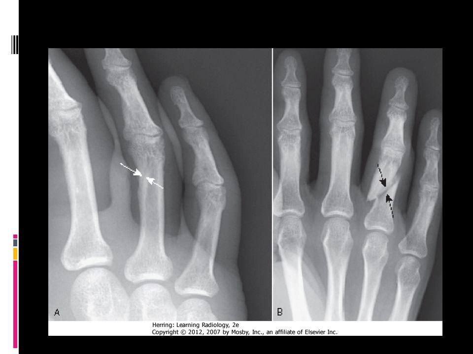 Disco epifisiario/fractura
