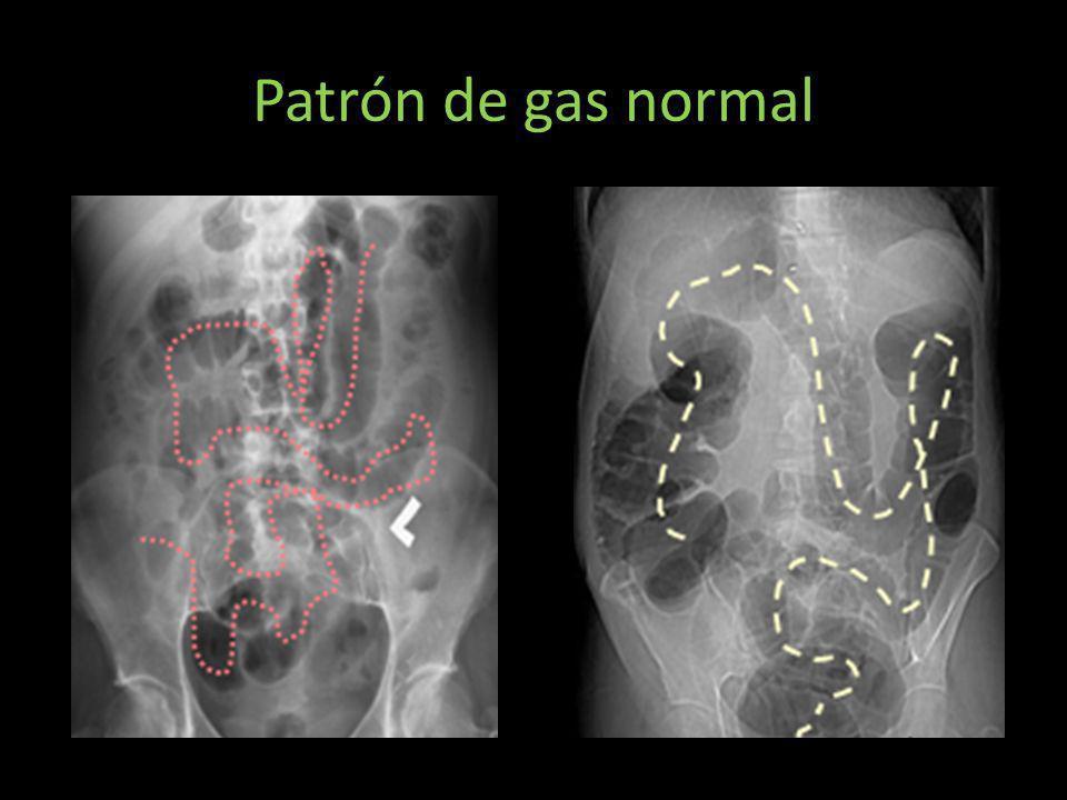 Patrón de gas normal