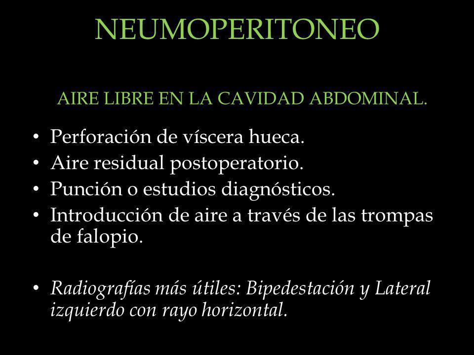 NEUMOPERITONEO Perforación de víscera hueca. Aire residual postoperatorio. Punción o estudios diagnósticos. Introducción de aire a través de las tromp