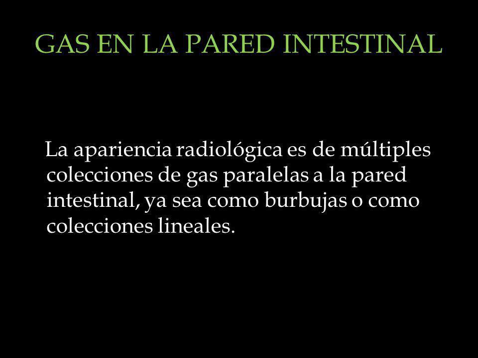 GAS EN LA PARED INTESTINAL La apariencia radiológica es de múltiples colecciones de gas paralelas a la pared intestinal, ya sea como burbujas o como c