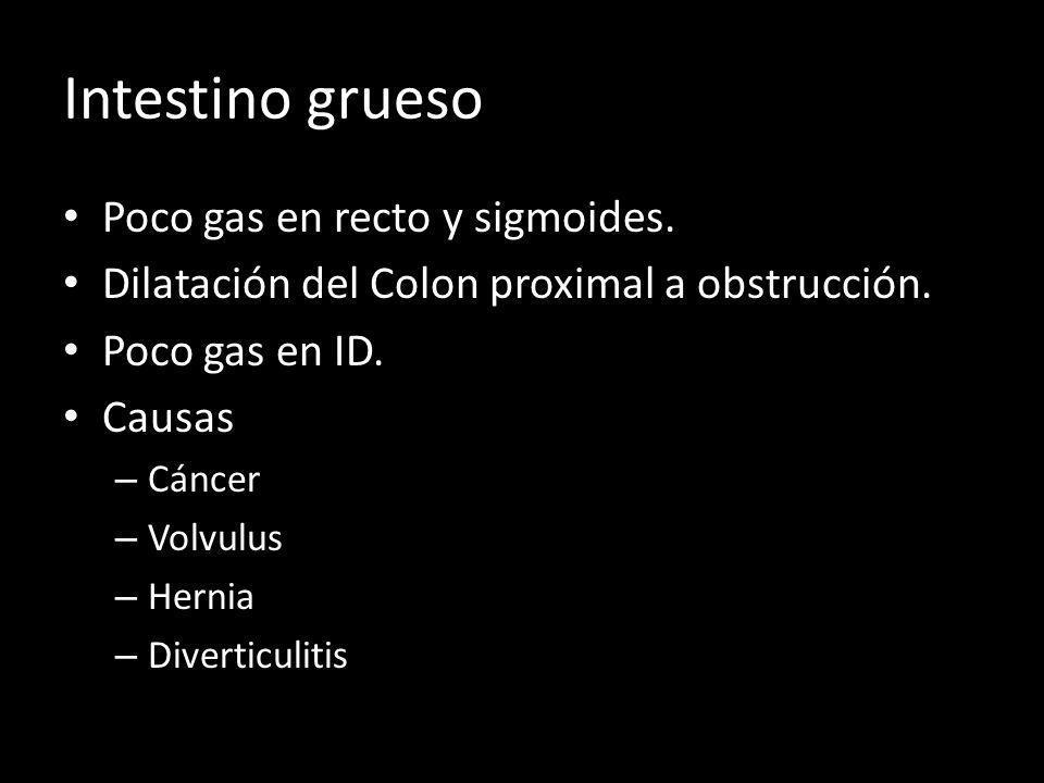 Intestino grueso Poco gas en recto y sigmoides. Dilatación del Colon proximal a obstrucción. Poco gas en ID. Causas – Cáncer – Volvulus – Hernia – Div