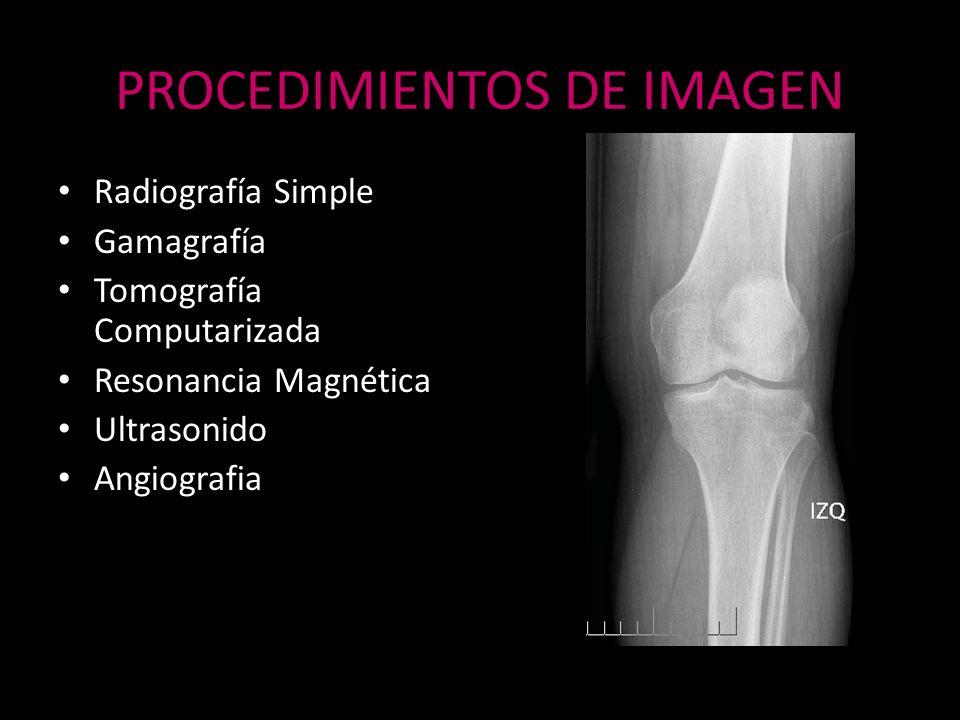 IRM Patología Articular – Hombro – Rodilla (meniscos y ligamentos) Alteraciones de los Tejidos Blandos Patología de la Columna Vertebral Alteración de la Médula Ósea