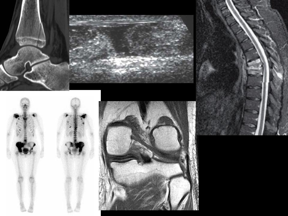 ETIOLOGÍA o Habituales Traumatismo o Por Insuficiencia o Patológicas Osteoporosis Enfermedades metabólicas Tumores o Por Fatiga o Estrés Trauma mecánico repetido