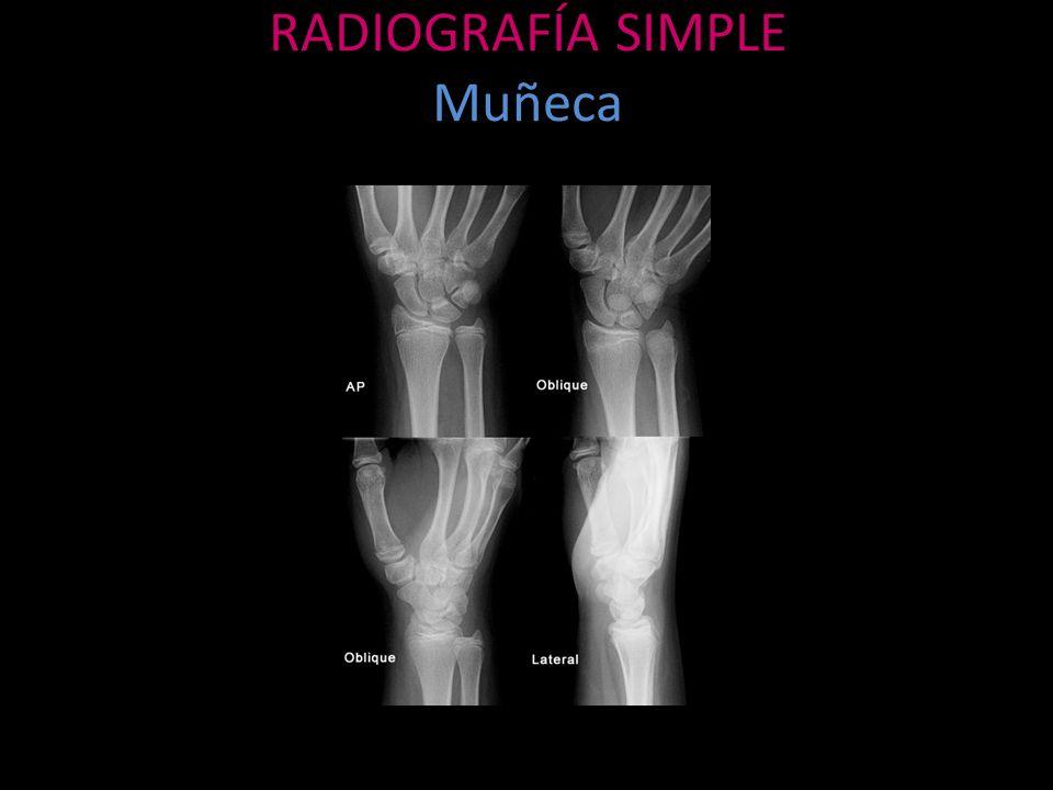 Fractura por estrés Trauma mecánico repetitivo Causa fatiga Por insuficiencia, osteoporosis, etc.