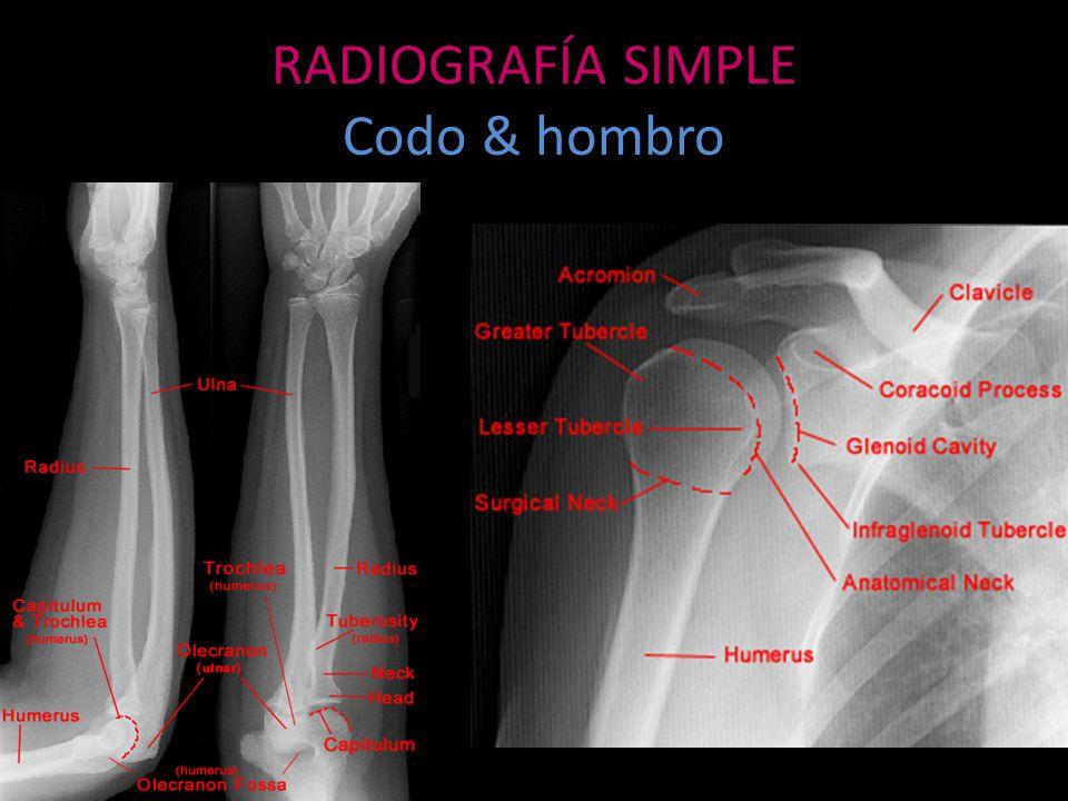 ANGIOGRAFÍA Indicaciones – Evaluación de fracturas complejas asociadas a lesión vascular – Extensión de tumores musculoesqueléticos – Intervencionismo Embolización Quimioterapia Signos angiográficos de malignidad – Invasión vascular (vasos patológicos).