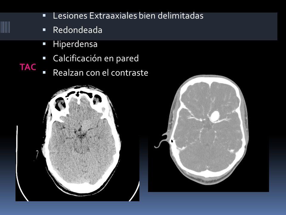 TAC Lesiones Extraaxiales bien delimitadas Redondeada Hiperdensa Calcificación en pared Realzan con el contraste