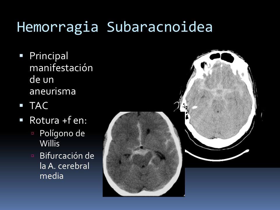Hemorragia Subaracnoidea Principal manifestación de un aneurisma TAC Rotura +f en: Polígono de Willis Bifurcación de la A. cerebral media