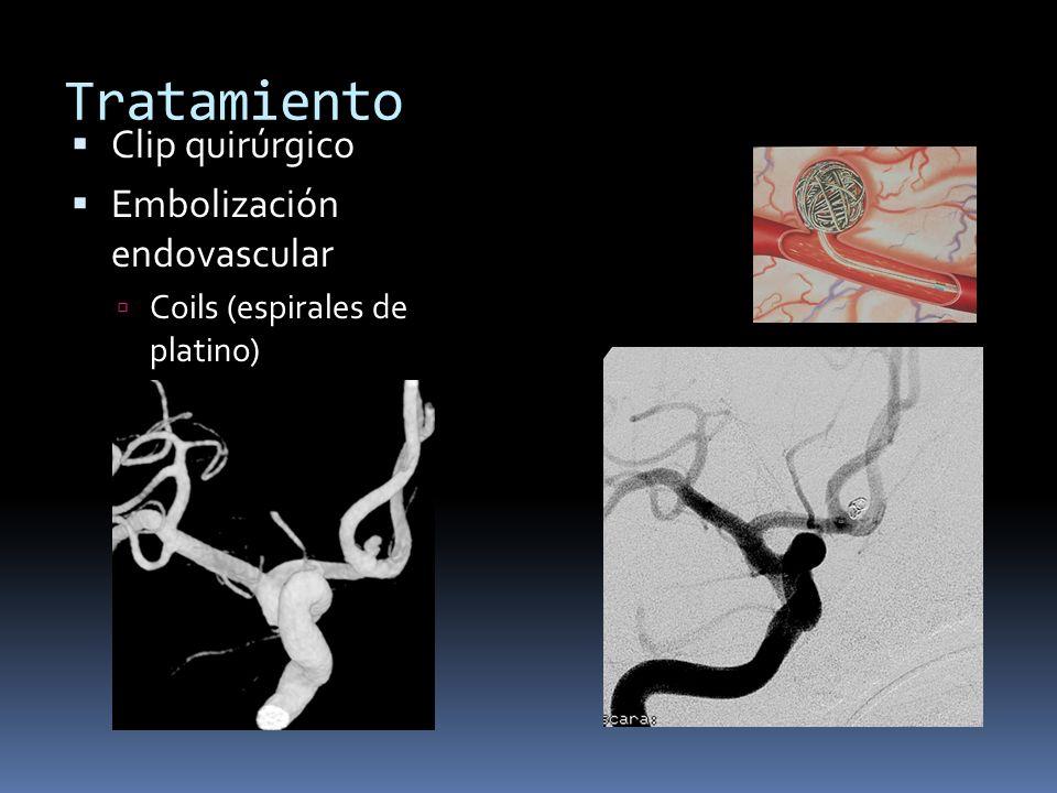 Tratamiento Clip quirúrgico Embolización endovascular Coils (espirales de platino)