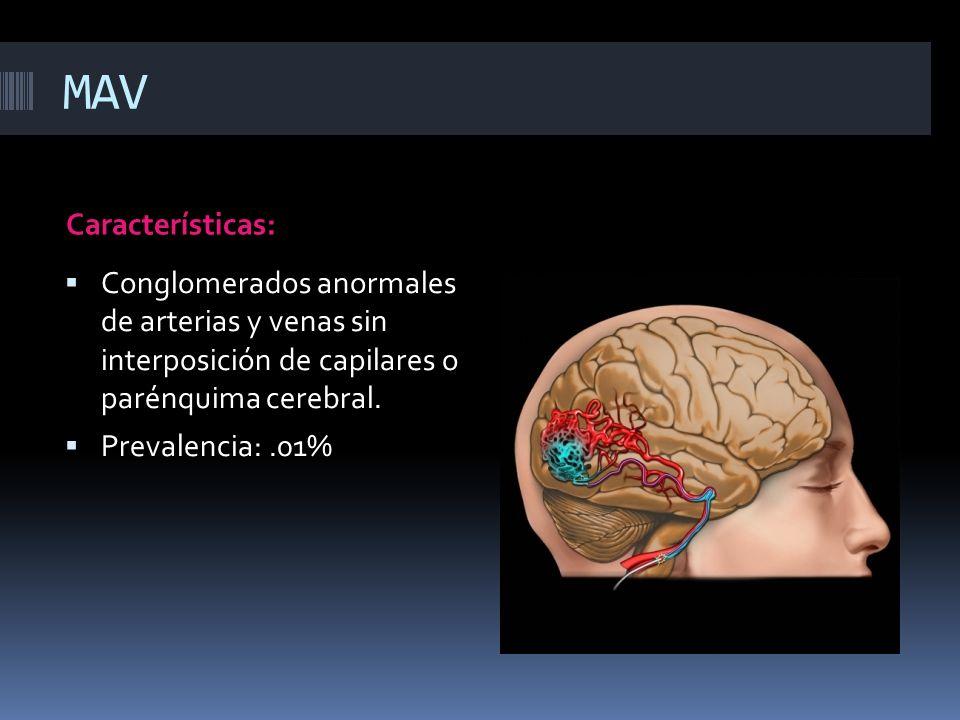 MAV Características: Conglomerados anormales de arterias y venas sin interposición de capilares o parénquima cerebral. Prevalencia:.01%