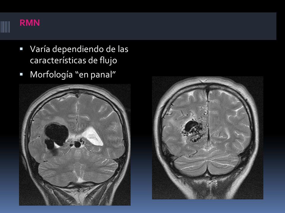 RMN Varía dependiendo de las características de flujo Morfología en panal