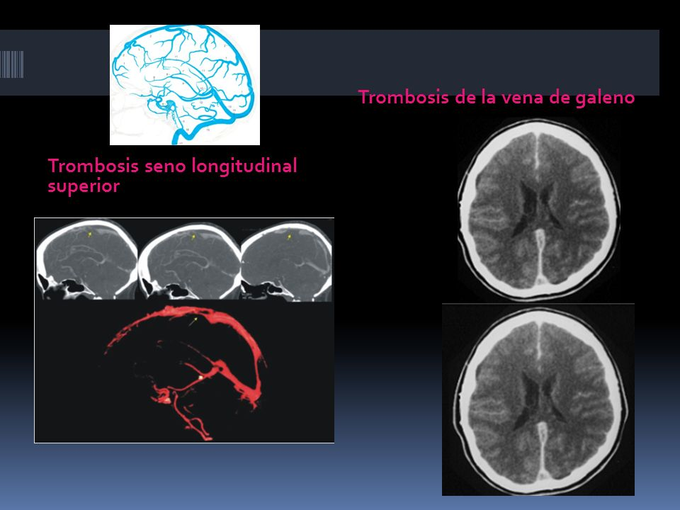 Trombosis seno longitudinal superior Trombosis de la vena de galeno
